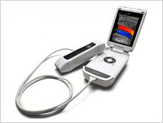 携帯型カラードップラー超音波検査
